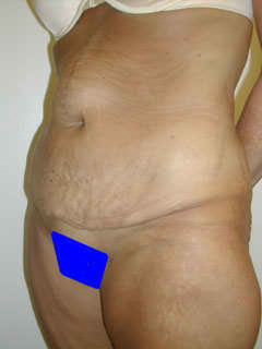 Before Tummy Tuck and Hernia Repair 1 Year After Weight Loss