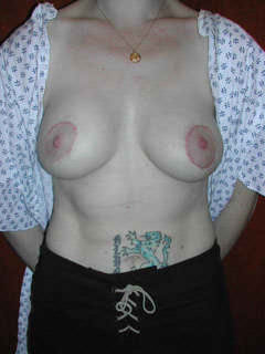 1 Month After Repair Botched Breast Implants