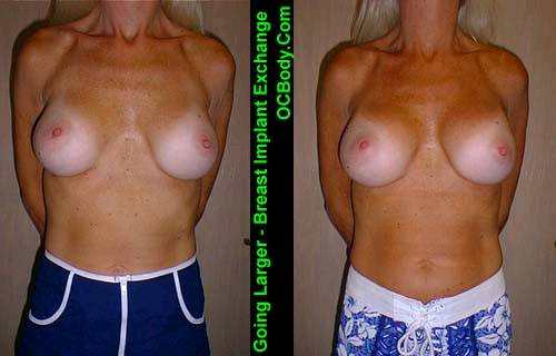Before and Three Months after Breast Implant Exchange