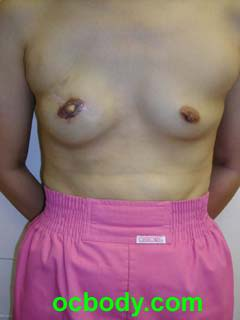 2 months after Nipple-Areolar Reconstruction- Stage II