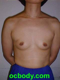 Prior to Mastectomy and Immediate Implant Reconstruction-stage I