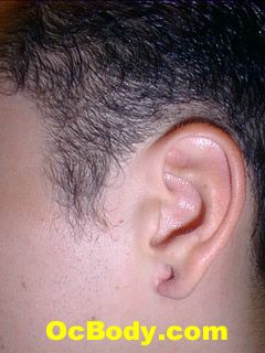 Complex Earlobe Repair 2 Months After