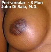 periareolar breast augmentation patient 3
