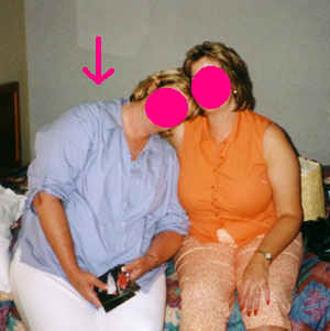 Before Gastric Bypass Procedure by Another Surgeon