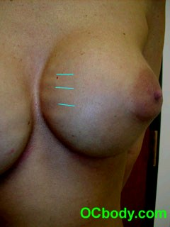 rippling breast implants